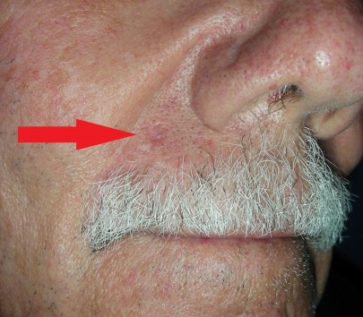 how to get rid of redness above upper lip