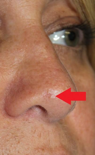 Skin Cancer: Skin Cancer Nose