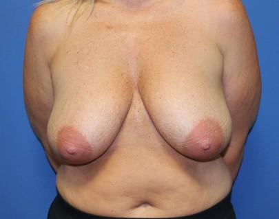 rallos breast reduction preop jpg 1080x810